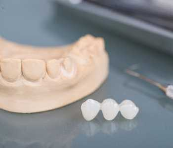 Tooth Replacement Kirkland - Image Of Dental Crowns