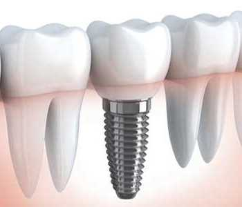 Dental Implant, Dental Implants Kirkland