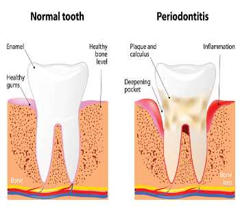 Gum Infection Kirkland - Image Of Gum Disease