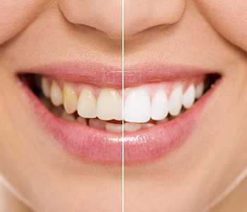 Teeth whitening image for Kingsgate Dental
