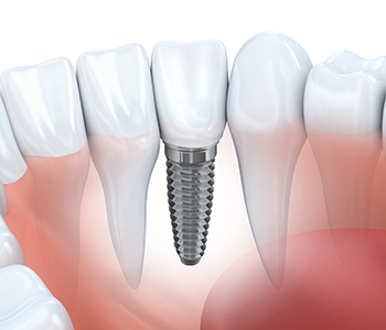 multiple ways to replace teeth with dental implants