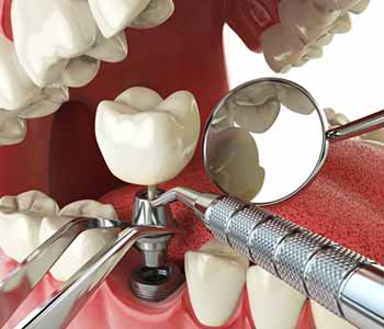 Dr. Ann Kelley at Kingsgate Dental explains why get dental implants to patients in Kirkland, WA area