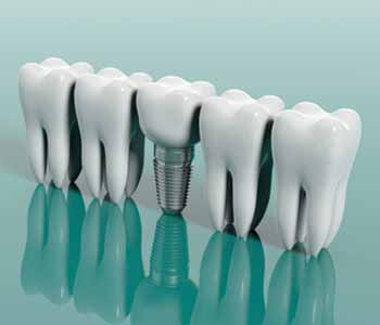 Dental implants are a permanent tooth replacement option. Contact Dr. Ann Kelley and the staff at Kingsgate Dental Clinic in Kirkland,