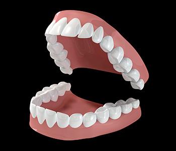 Denture Treatment Cost and Benefits in Kirkland WA area