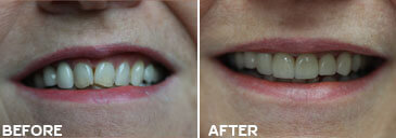 Smile gallery Kirkland - Before and After results of  Kingsgate Dental, Case 01