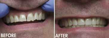 Smile gallery Kirkland - Before and After results of  Kingsgate Dental, 03