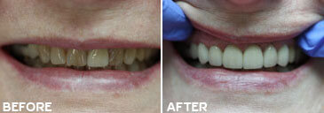 Smile gallery Kirkland - Before and After results of  Kingsgate Dental, Case 04