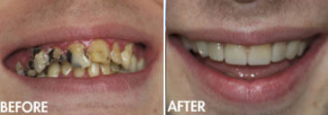 Smile gallery Kirkland - Before and After results of  Kingsgate Dental, Case 05