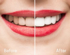 Dentures Kirkland - Before and After results of  Kingsgate Dental
