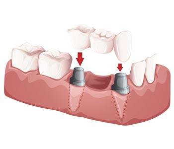 Best Dental Crowns and Bridges provider in Kirkland, WA area