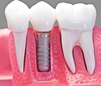 Best Dental Implants Treatment provider in Kirkland, WA area