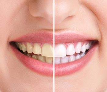 Best Teeth Whitening Treatment provider in Kirkland, WA area